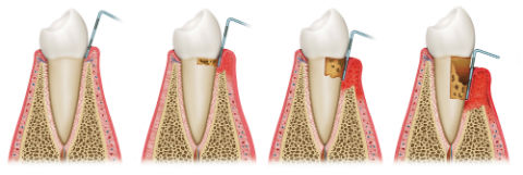 Gum Disease Treatment | Dr. Gallegos | Dentist Santa Fe, NM
