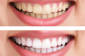 Teeth Whitening | Dr. Gallegos | Dentist Espanola, NM