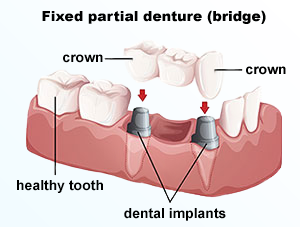 Dental Bridge | Dr. Gallegos | Dentist Santa Fe, NM