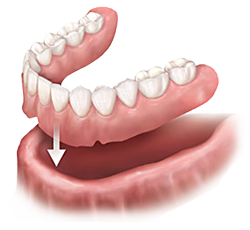 Dentures and Partials | Dr. Gallegos | Dentist Santa Fe, NM