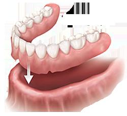 Dentures and Partials | Dr. Gallegos | Dentist Santa Fe, NM